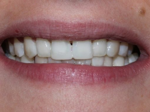 Becky's Six Month Smiles®