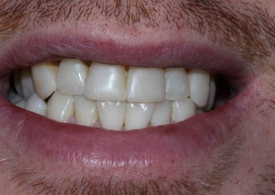 Wayne's Orthodontic treatment